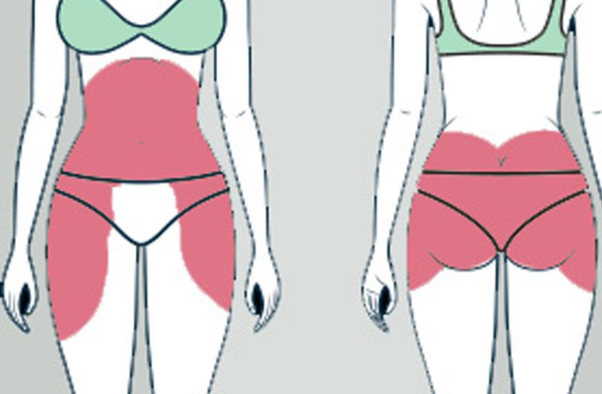 localisation-traitement-lipocavitation-dupoidsalaligne